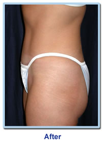 vaserlipo selection after